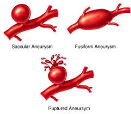 Aneurysms-2