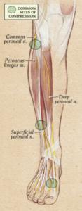 Laterl popliteal nerve palsy
